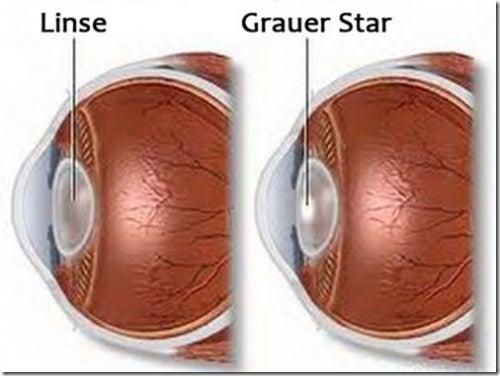 Linse-Grauer-Star