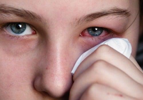 Gerötete Augen sind schmerzhaft