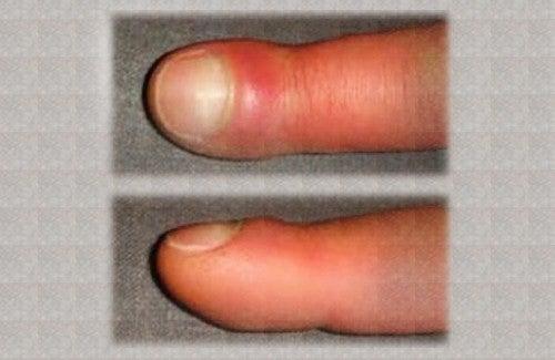 geschwollene Hände können schmerzen
