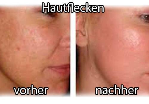 Hautfecken mit Apfelessig verbessern