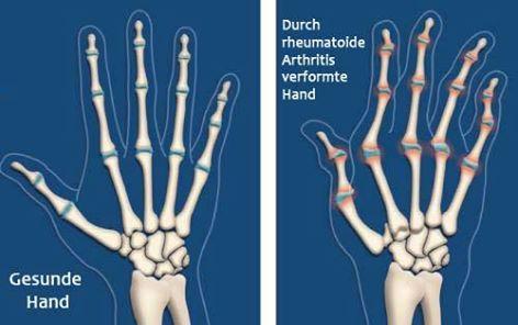 Arthritis – 6 Maßnahmen zur Linderung