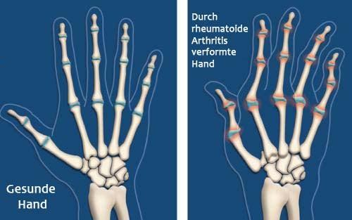 rheumatoide-arthritis