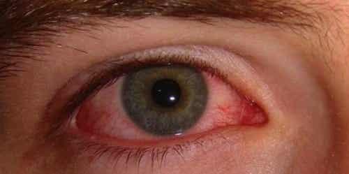 Gerötete Augen - Ursachen und einfache Hausmittel