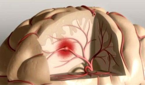 Schlaganfall – Tipps zur Vorsorge