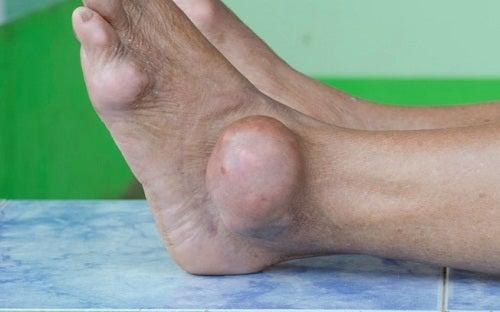 Medizinische Kräuter gegen einen erhöhten Harnsäurespiegel