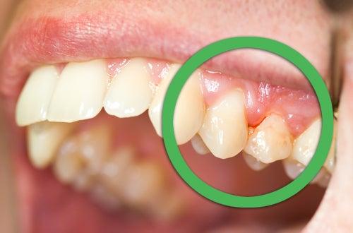Behandlung der häufigsten Probleme im Mund