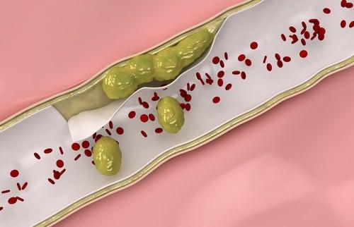 Naturheilmittel zur Reinigung der Arterien