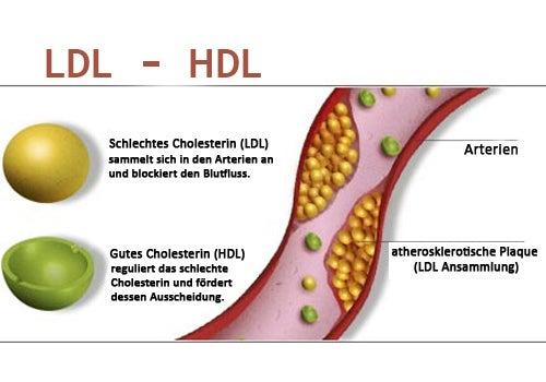 cholesterin1