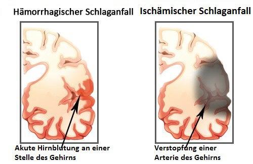 schlaganfall1