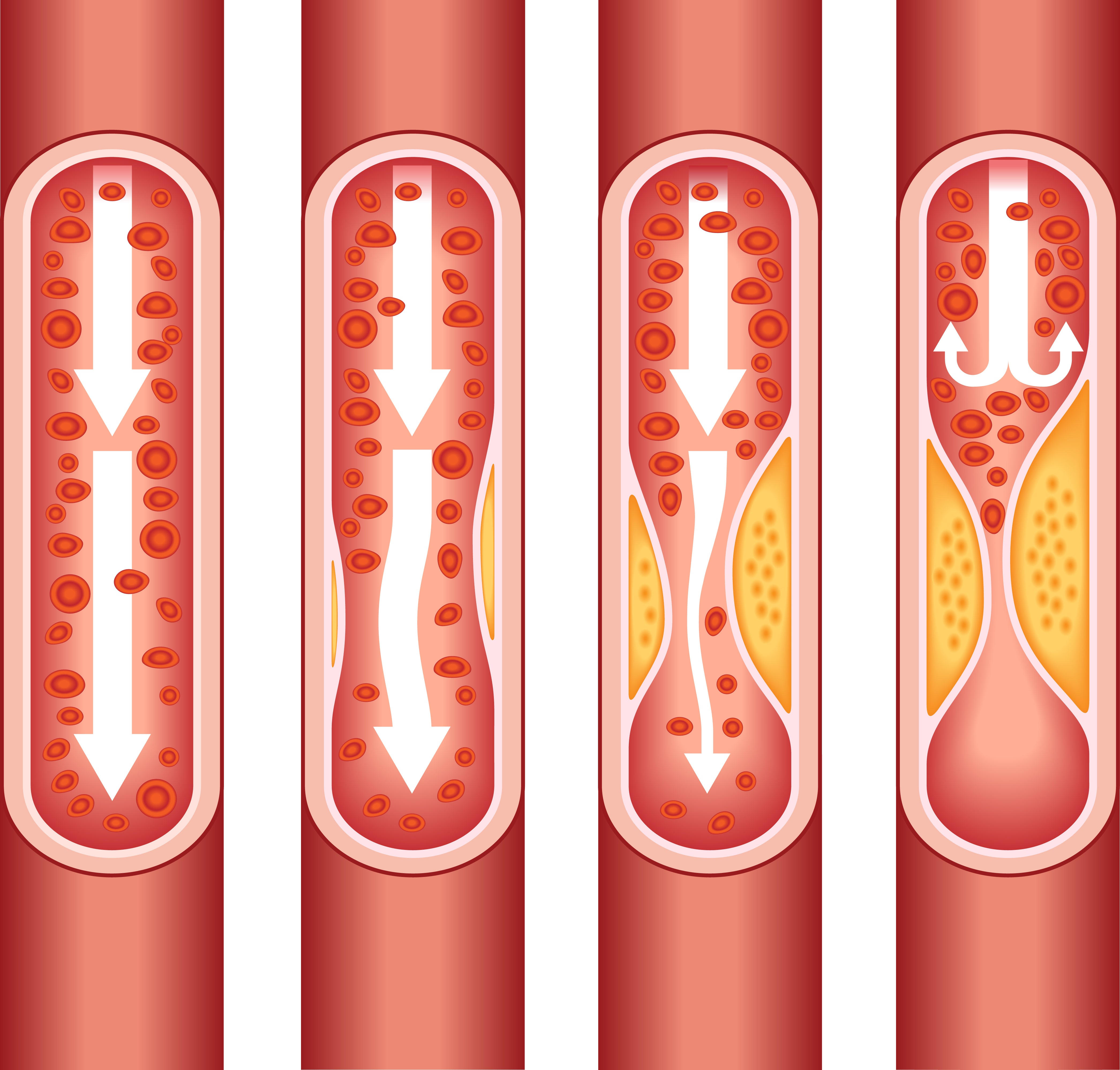 Entstehung und Vorbeugung von Thrombose