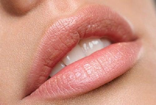 Die besten natürlichen Mittel gegen trockene Lippen