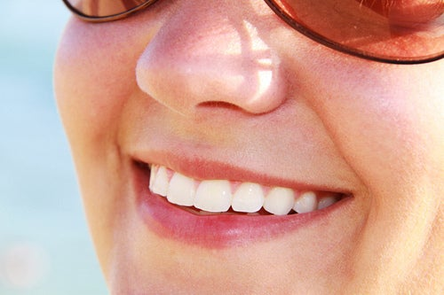 Eine Frau zeigt beim Lächeln ihre Zähne
