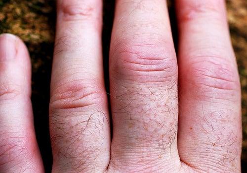 Arthritis4