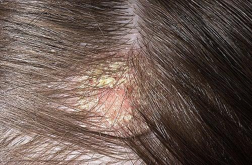Dermatitis 3