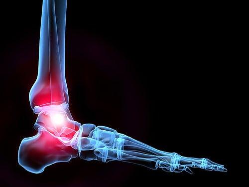 Gesunde Knochen dank Kalzium