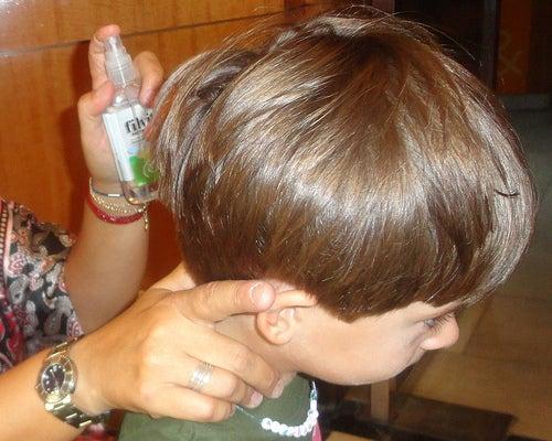 Kopfläuse
