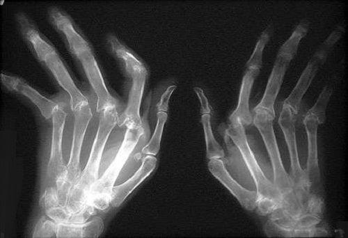 Natürliche Heilmethoden gegen rheumatoide Arthritis