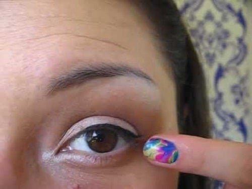 Tipps gegen geschwollene Augenlider