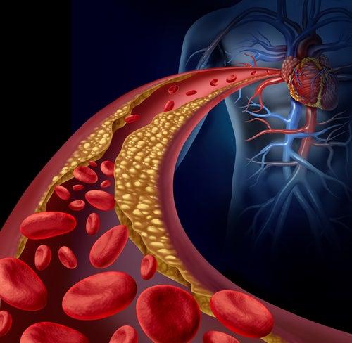 Wie man Triglyceride auf natürliche Weise reduzieren kann