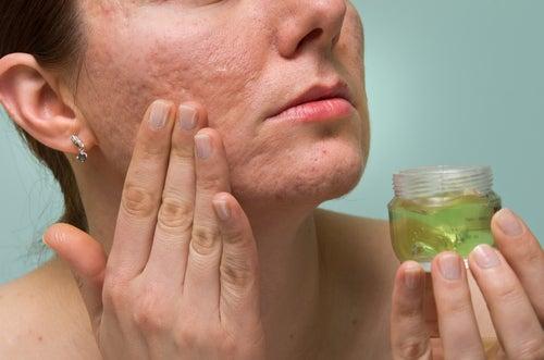 Aknenarben natürlich entfernen