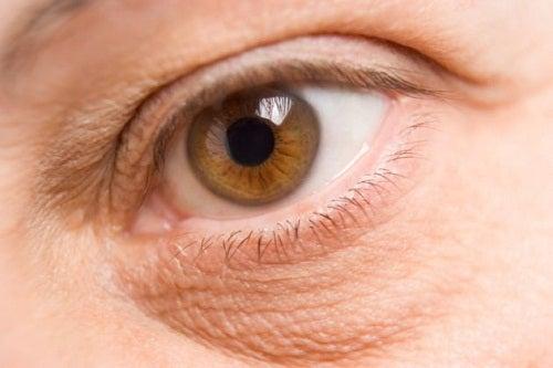 Naturmittel gegen Augenschatten