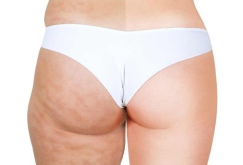 Massage gegen Cellulite