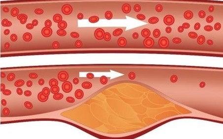 Heilkräuter für die Cholesterinregulierung