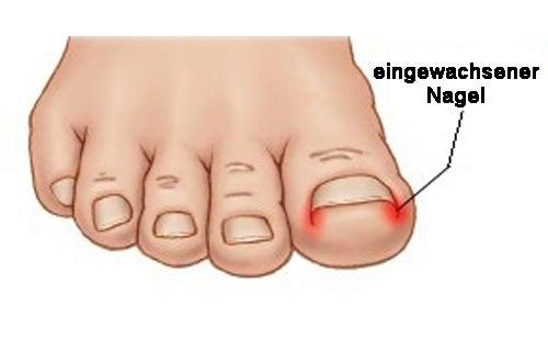 eingewachsener-nagel1
