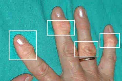 Natürliche Heilmittel bei Arthritis