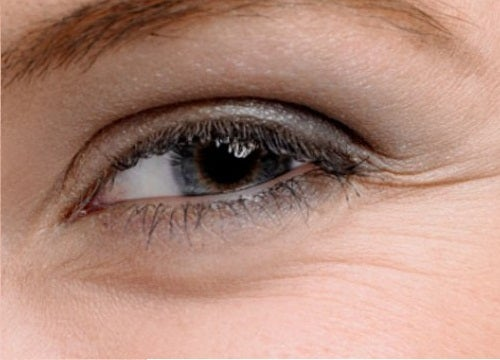Was kann man gegen geschwollene Tränensäcke tun?