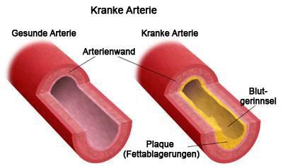 Kranke Arterie