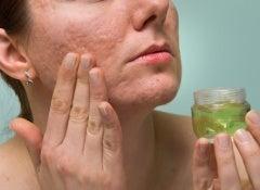 Naturheilmittel-gegen-Narben
