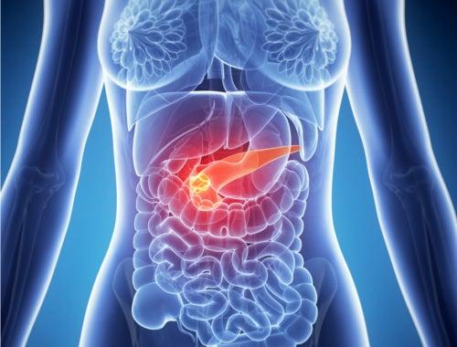 Bauchspeicheldrüse als Auslöser für rechtsseitige Bauchschmerzen