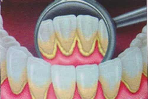 Zahnstein natürlich vorbeugen