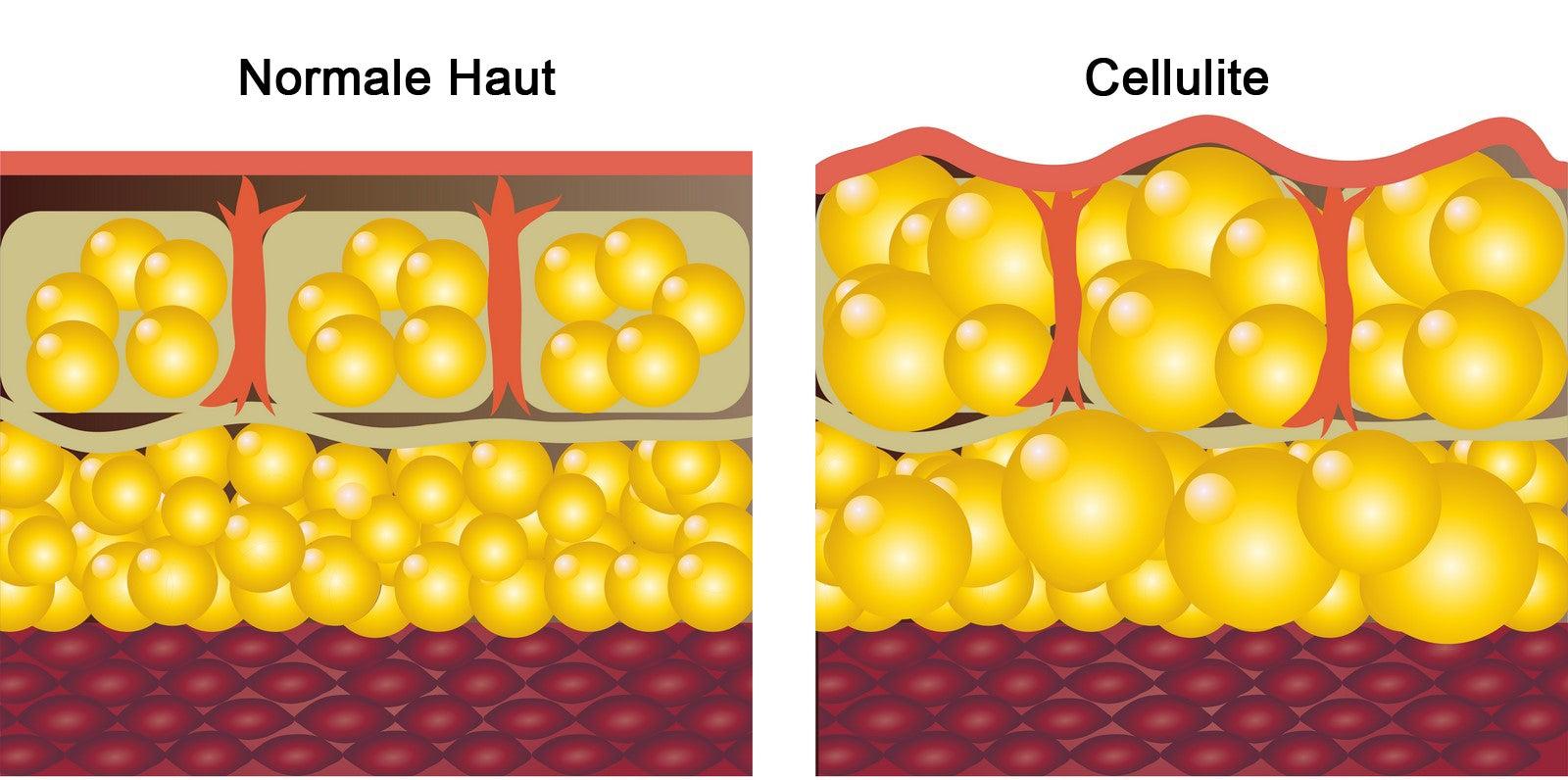 cellulite1