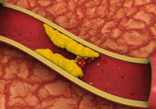 Cholesterinsenkende Säfte