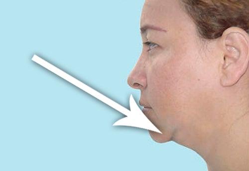 4 Tipps gegen das gefürchtete Doppelkinn