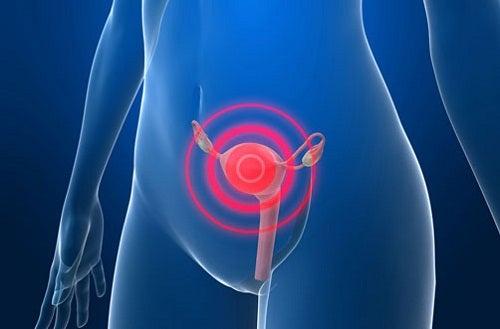 Mögliche Anzeichen für Gebärmutterhalskrebs