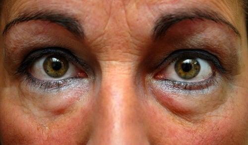 Schwellungen unter den Augen behandeln
