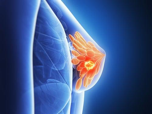 Wird das Brustgewebe durch BHs geschädigt?