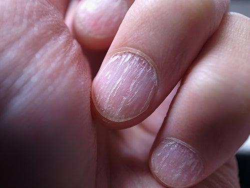 Nagelpilz-Finger