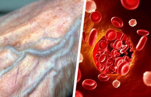 Tipps für eine bessere Durchblutung