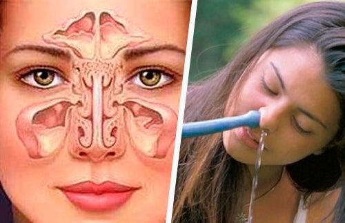 sinusitis-nasenreinigung
