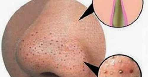 Mitesser und Hautunreinheiten natürlich beseitigen