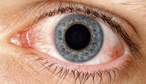 Natürliche Hausmittel gegen trockene Augen