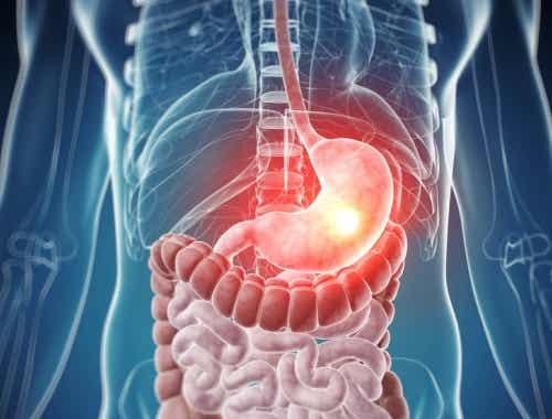Symptome einer Lebensmittelvergiftung