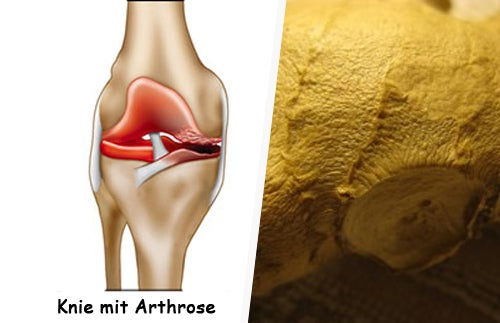 Wie kann man Arthrose behandeln?