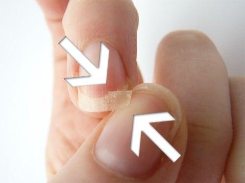 bruechige-Fingernaegel