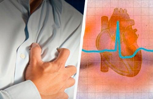 Gefährliche Herzrhythmusstörungen Symptome