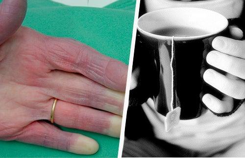 Kalte Hände – mögliche Ursachen